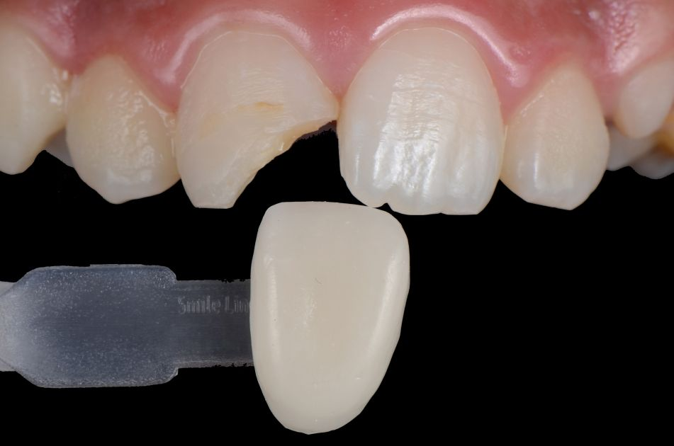 shade selection anterior tooth